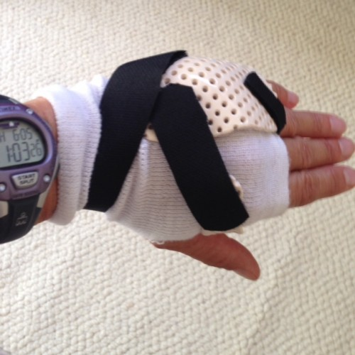 This removable and water proof cast is designed to let my hand mend while I train for my next event.